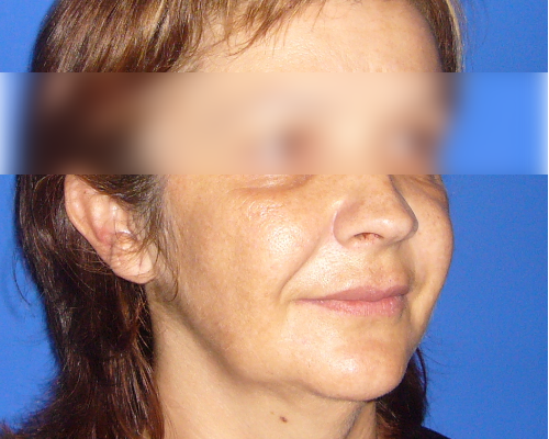 caso real lifting facial dr sarmentero cirugia plastica 1