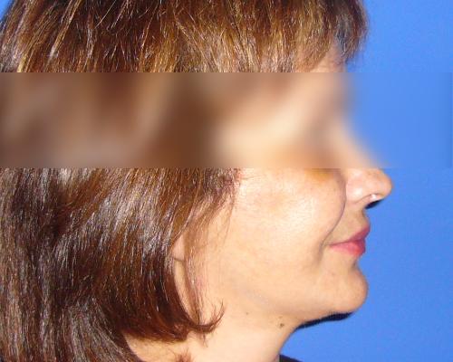 caso real lifting facial dr sarmentero cirugia plastica 2-