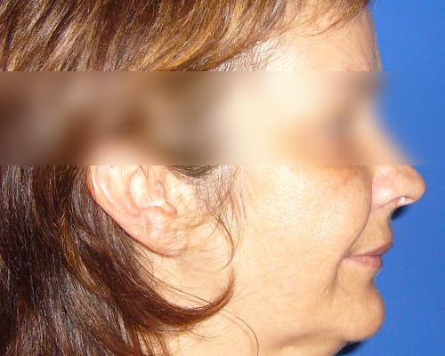 caso real lifting facial dr sarmentero cirugia plastica 2
