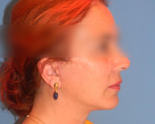 caso real lifting facial dr sarmentero cirugia plastica 3-