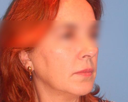 caso real lifting facial dr sarmentero cirugia plastica 3