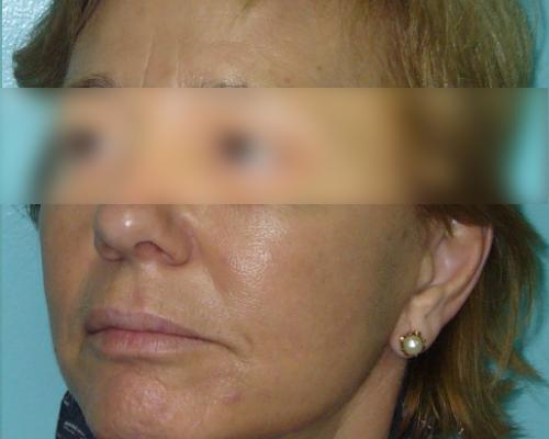 caso real lifting facial dr sarmentero cirugia plastica 4-