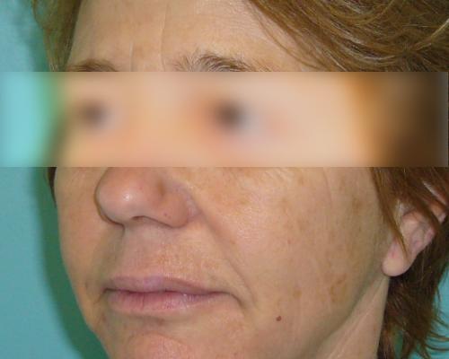 caso real lifting facial dr sarmentero cirugia plastica 4