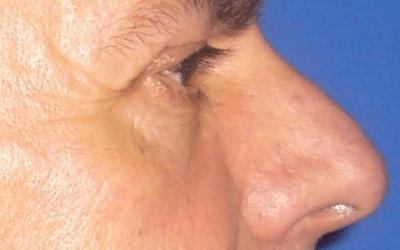 caso real rinoplastia dr sarmentero cirugia plastica 2
