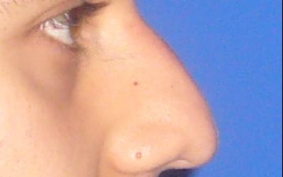 caso real rinoplastia dr sarmentero cirugia plastica 5
