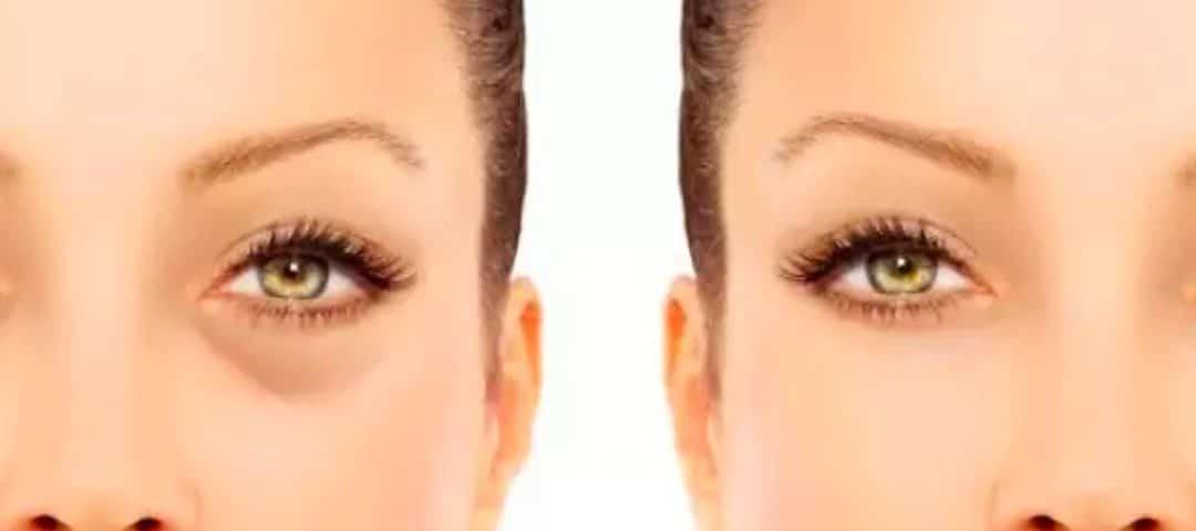 imagen de nanofat cirugia estetica madrid doctor sarmentero eliminacion de ojeras