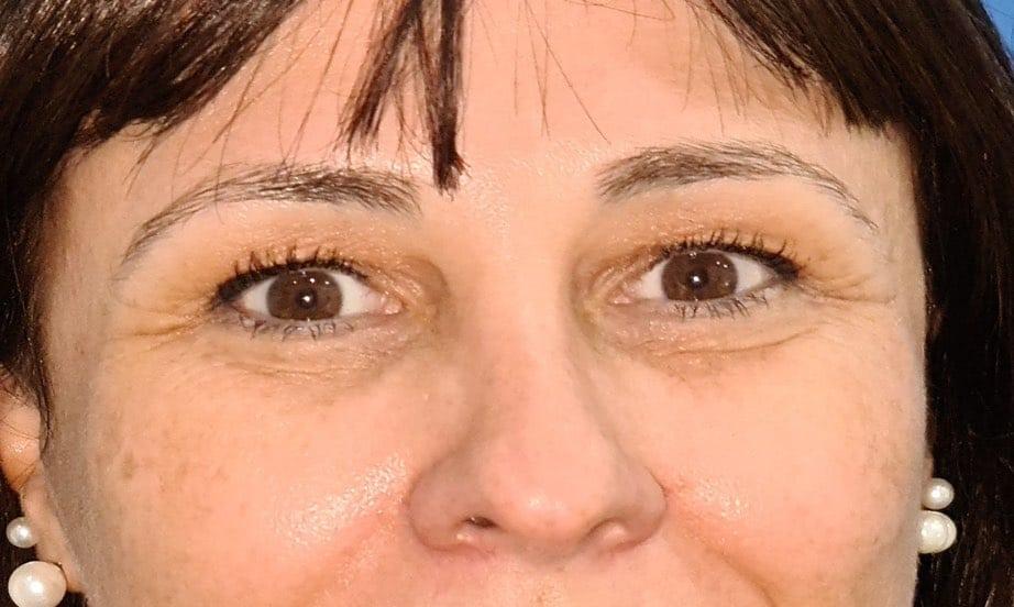 Caso real de eliminación de ojeras nanofat doctor sarmentero cirugia palstica madrid 33