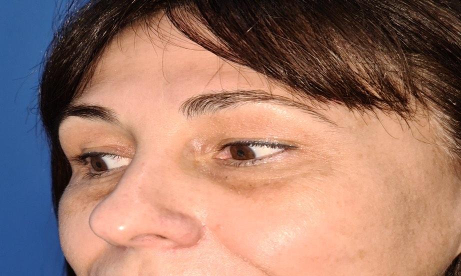 Caso real de eliminación de ojeras nanofat doctor sarmentero cirugia palstica madrid 4