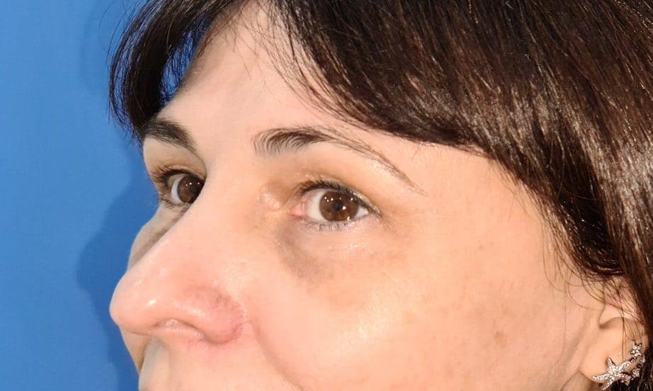 Caso real de eliminación de ojeras nanofat doctor sarmentero cirugia palstica madrid 44