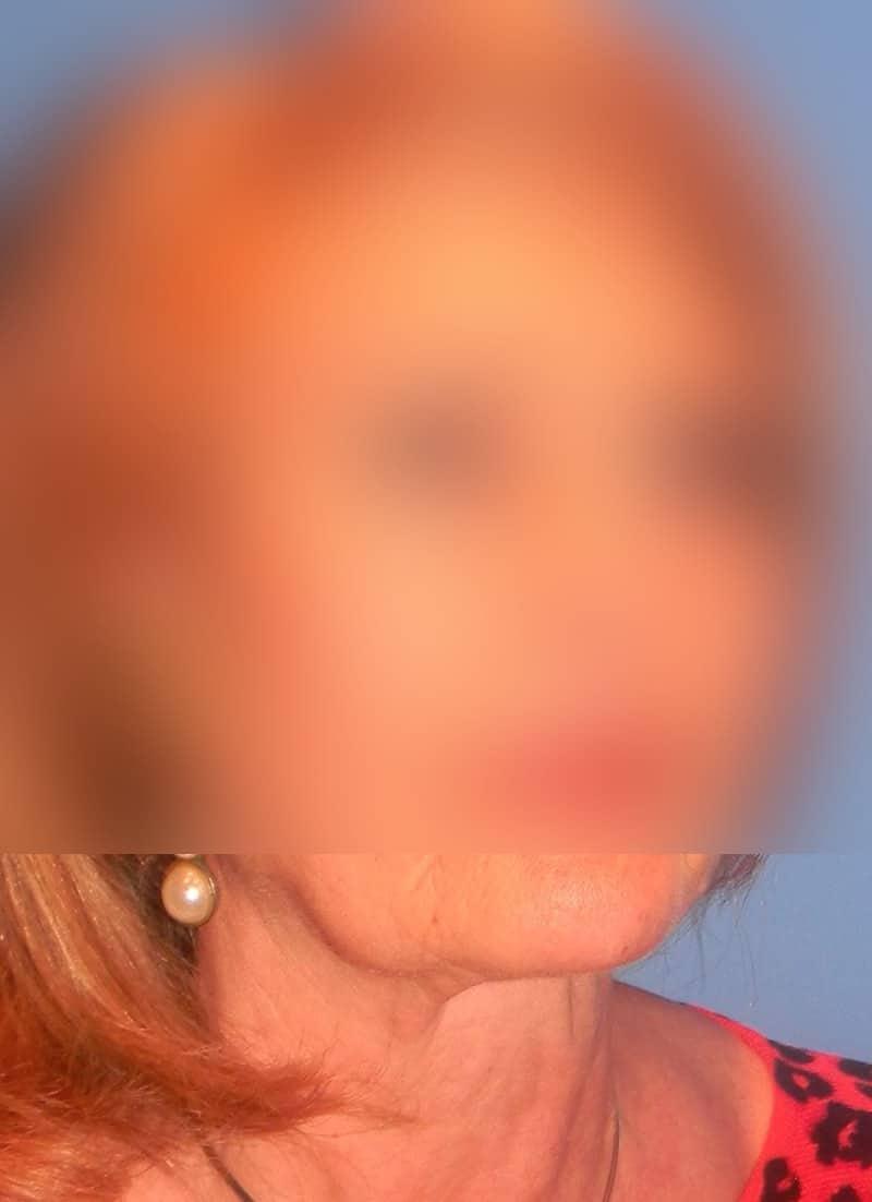 Platisma rejuvenecimiento de cuello doctor sarmentero cirugia plastica y estetica madrid 1