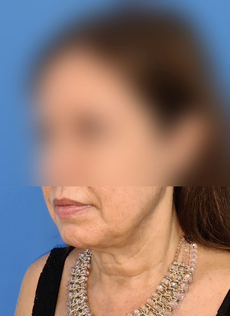 Platisma rejuvenecimiento de cuello doctor sarmentero cirugia plastica y estetica madrid 4