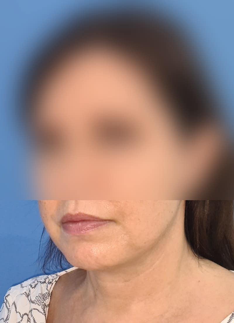 Platisma rejuvenecimiento de cuello doctor sarmentero cirugia plastica y estetica madrid 44