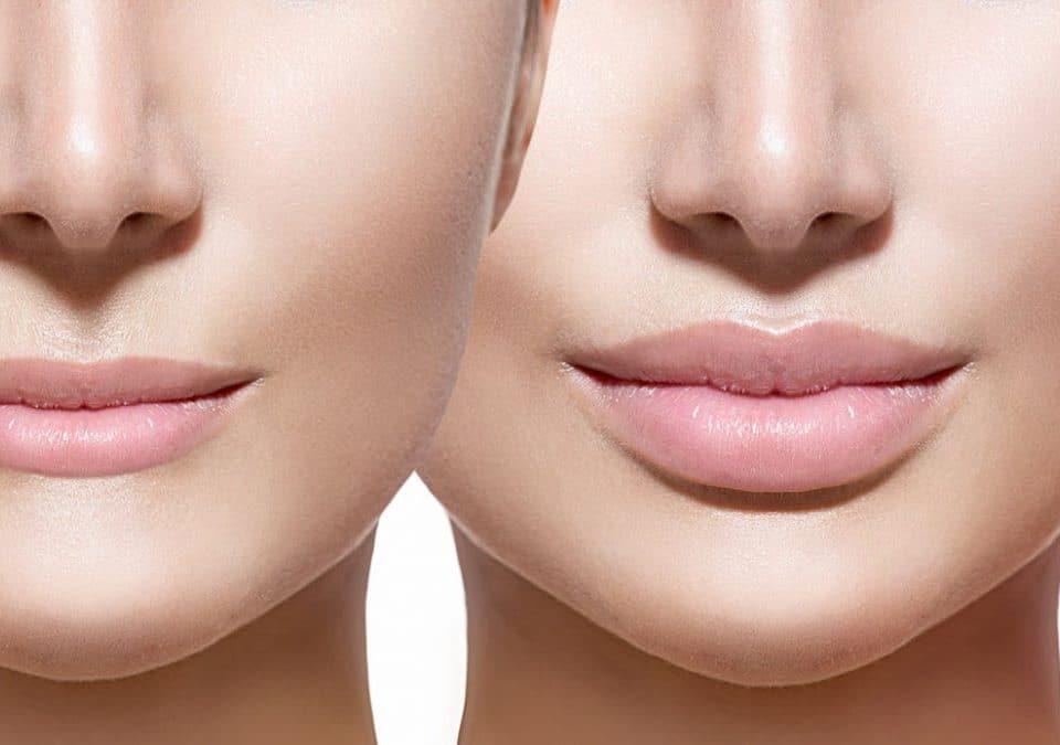 imagen de aumento de labios doctor sarmentero cirugia estetica madrid